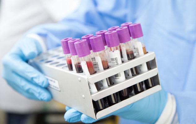 Coronavirus Piemonte: Bollettino del 24 maggio 2020 (nuovi contagi, decessi, tamponi)